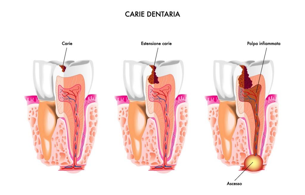 fasi carie dentaria
