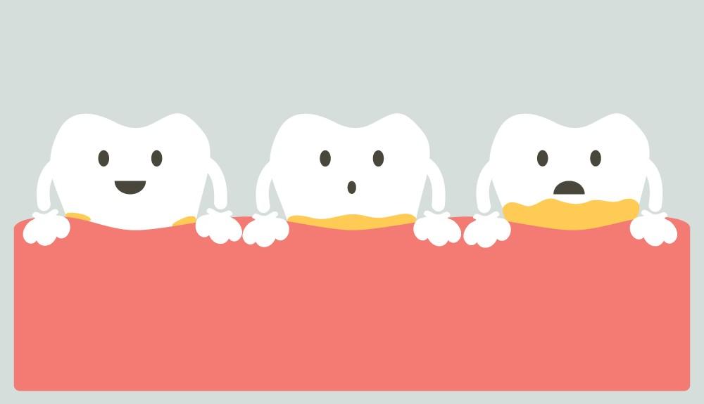 denti cariati bambini